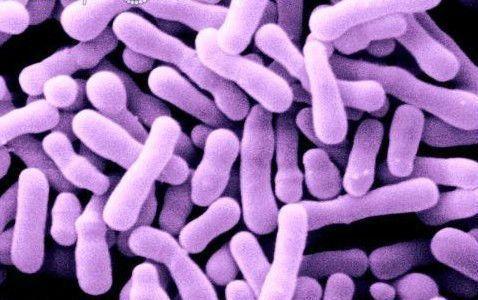 Bifidobacterium lactis Nasıl Bir Probiyotiktir?