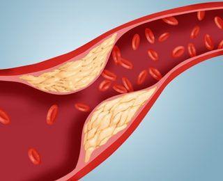 Kolesterol İlaçları İşe Yarıyor Mu?