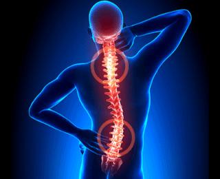 Kemik Erimesinden Korunmanın 10 Yolu