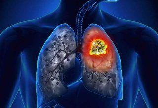 Akciğer Kanserinin Belirtileri