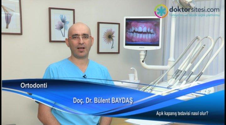 """Açık kapanış tedavisi nasıl olur? """"Prof. Dr. Dt. Bülent  BAYDAŞ"""""""