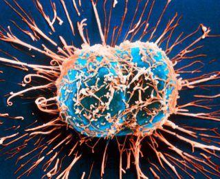 Hücre Tipleri Nelerdir?