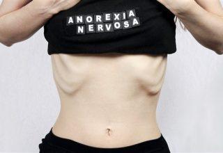 Anoreksiya Nervoza Hakkında Bilinmesi Gerekenler