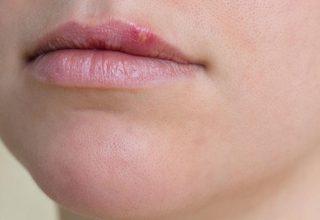 Herpes Olduğunuzu Nasıl Anlarsınız?