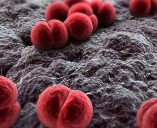 Menengokoksemi: Nedenleri, Semptomları ve Daha Fazlası