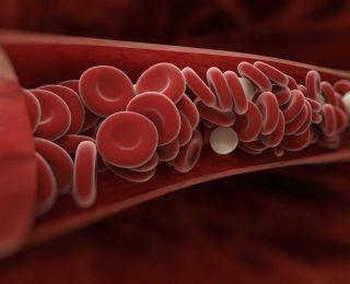 Arteriyel Embolizm