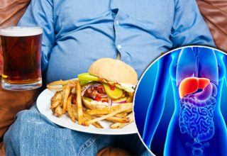 Yağlı Karaciğer (Hepatik Steatoz)