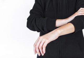Sistemik Skleroz (Skleroderma)