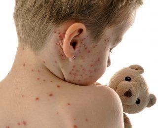 Zona Hastalığı Nedir? Belirtileri Nelerdir?