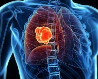 Akciğer Kanseri Hakkında Bilmeniz Gereken Her Şey