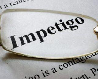 Impetigo 101: Semptomları, Nedenleri ve Tedavisi