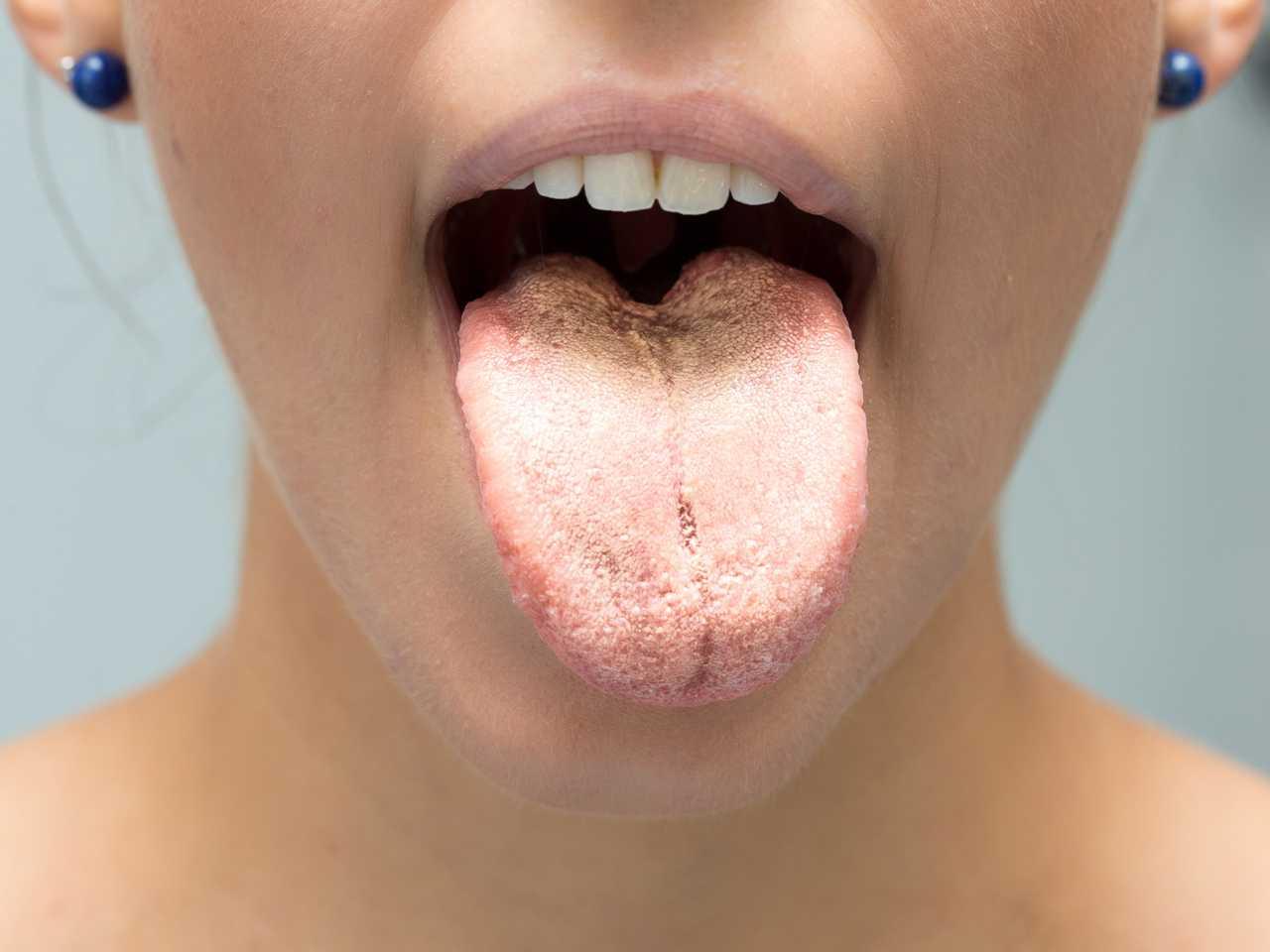 Ağızda Pamukçuk Hakkında Bilmeniz Gereken Her Şey | Probiyotix