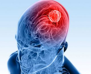 Beyin Kanseri