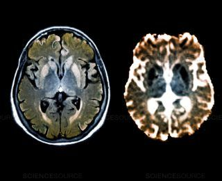 Creutzfeldt-Jakob Hastalığı ve Çılgın İnek Hastalığı