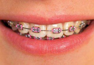 Diş Boşlukları