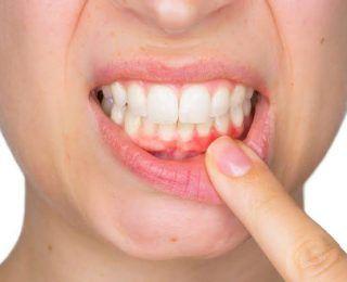 Dişeti Hastalığı (Dişeti İltihabı)