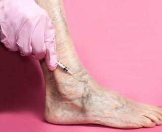 Stasis Dermatit ve Ülserler