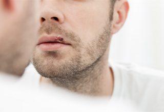 Tekrarlayan Herpes Simpleks Labialis