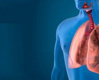 Akciğer Aktinomikozu