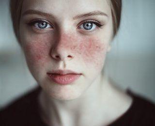 Lupus Hakkında Bilmeniz Gereken Her Şey