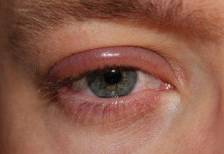 Zona gözleri nasıl etkiler?